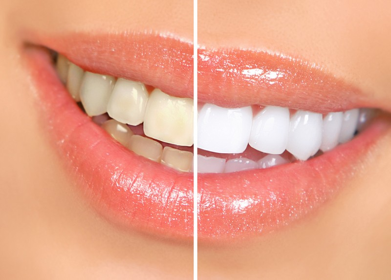teeth whitening services in Diamond Bar, CA